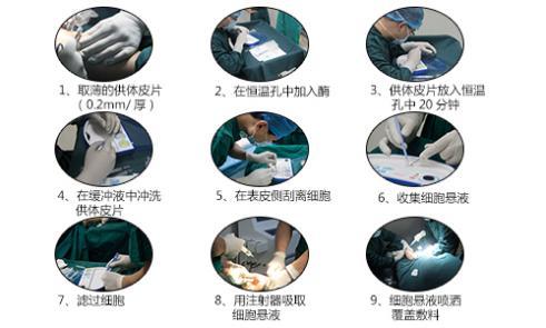 ReCell自体活性皮肤细胞移植术.jpg